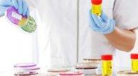 Бактерії в сечі у жінок: причини