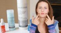 Хлористий кальцій і пілінг обличчя: як робити розчин в домашніх умовах
