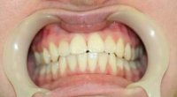 Кіста на корені зуба, чому виникає і як її лікувати