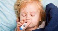Краснуха у дітей – лікування, симптоми та діагностика