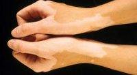 Білі плями на шкірі після засмаги: причини, лікування