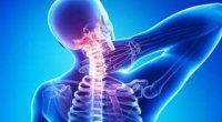 Шийний остеохондроз: симптоми, лікування