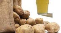 Лікування шлунка картопляним соком: способи приготування цілющого засобу