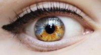Родимка в оці: види невусів, лікування та профілактика