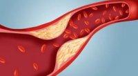 Як знизити холестерин в крові?