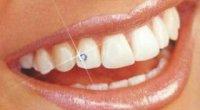 Стрази на зубах: що це таке і як це робиться