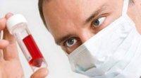 Сечова кислота: норма у чоловіків