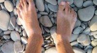Набрякають ноги: причини у чоловіків