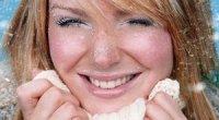 Алергія на холод на обличчі і руках, причини, симптоми і лікування