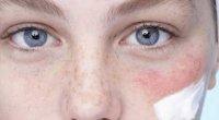 Мазь від свербіння і подразнення шкіри на обличчі і в інтимних місцях