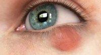 Халязіон нижньої повіки: лікування в домашніх умовах