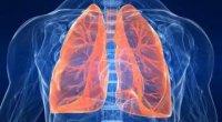 Бронхоектатична хвороба легень: симптоми, лікування