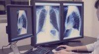 Флюорографія і рентген легенів: в чому різниця?