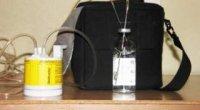 Озонування крові: показання та протипоказання