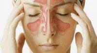 Лікування синуситу у дорослих: препарати