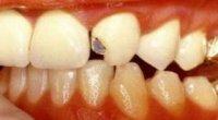 Відколовся шматочок зуба: що робити в такій ситуації?