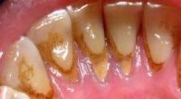 Що таке зубний камінь, і чи можна його лікувати в домашніх умовах?