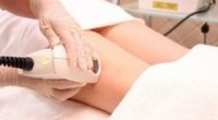 Як позбутися від судинної сітки на ногах?