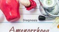 Що таке аменорея: причини відсутності місячних і лікування