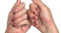 Лікування дисгидроза кистей рук