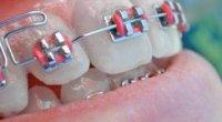 Як випрямити зуби в домашніх умовах: корисні поради
