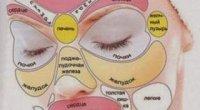 Про що говорять прищі на обличчі й тілі: що вони означають?