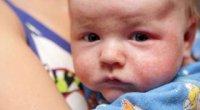 Шершаві плями на тілі дитини