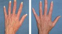 Варикоз на руках: симптоми і причини