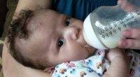 Непереносимість лактози у немовлят: симптоми і лікування