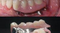 Міст на зуби: технологія протезування та заміщення без обточування