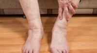 Набряк ноги нижче коліна: причини і лікування