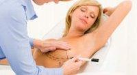 Як підняти обвислі груди? Робота над відновленням красивих форм