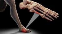 Перелом мізинця на нозі: симптоми. Що робити?