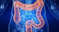 Захворювання прямої кишки: симптоми і ознаки хвороби